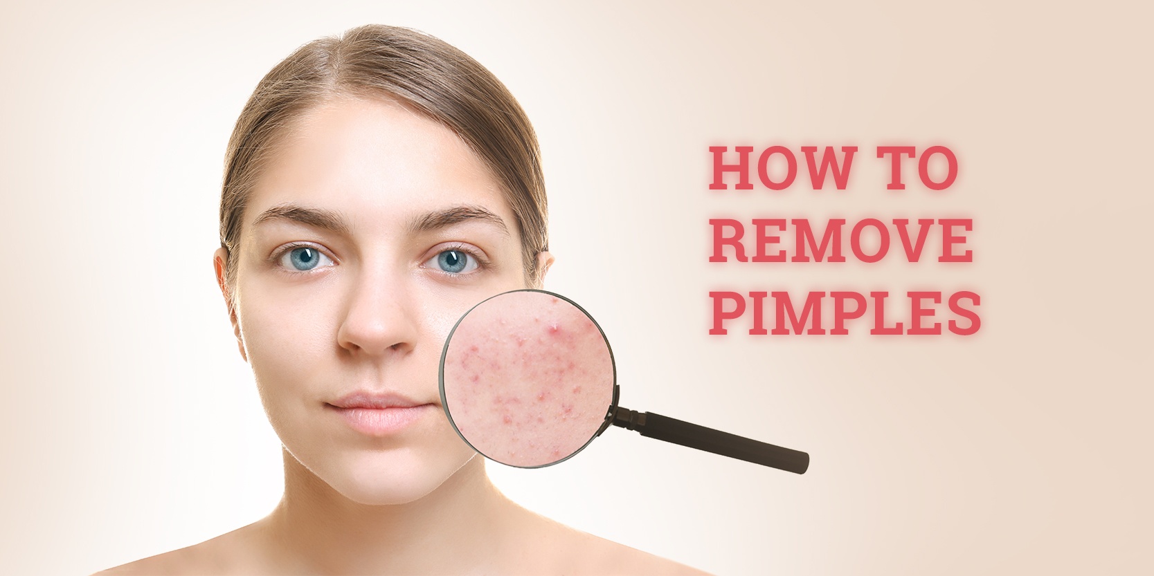 5 Tips by physicians on how to remove pimples and pimple marks